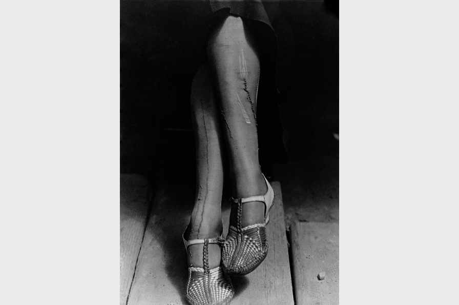 Dorothea Lange, A Sign of the Times - Depression - Mended Stockings - Stenographer, circa 1934. © The Dorothea Lange Collection, the Oakland Museum of California, City of Oakland. Gift of Paul S. Taylor.